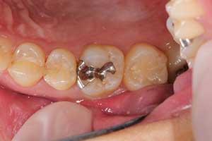 歯と身体に優しい「詰め物・被せ...